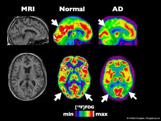 Meer kans op Alzheimer met veelgebruikte medicatie 4