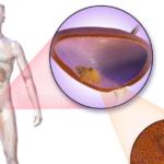 Voeding, supplementen en een 'opmerkelijk ziektebeloop' 15