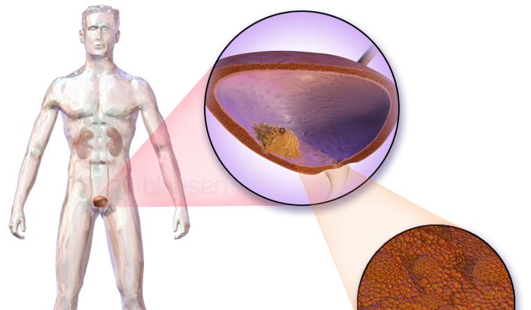 Voeding, supplementen en een 'opmerkelijk ziektebeloop' 3