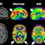 Alzheimer als diabetes type 3 4