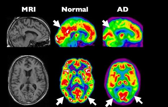 Alzheimer als diabetes type 3 3