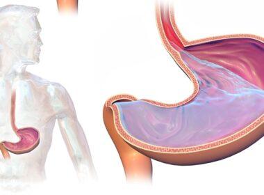 'Leefregels' tegen refluxziekte 3