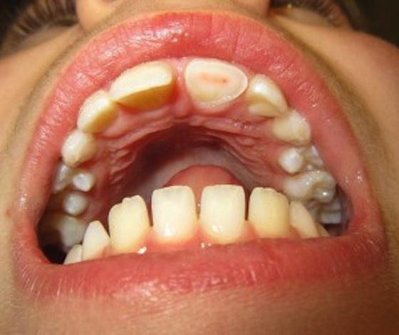 Enge mondbacteriën veroorzaken enge ziekten 3