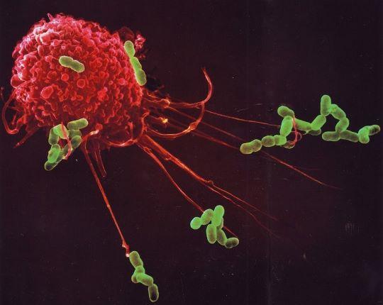 Coronapatiënten overlijden niet aan het virus per sé, maar aan een overactief immuunsysteem 3
